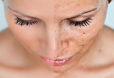 4 remedios para eliminar las manchas solares en la piel