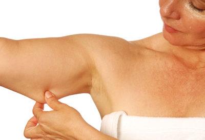 5 tips para tonificar la piel flácida