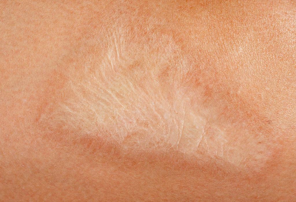 3 remedios naturales para atenuar cicatrices