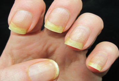 3 Remedios para las uñas manchadas por esmalte