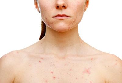 5 Mitos sobre el acné