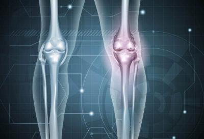 Alimentos que eliminan el dolor de la artritis