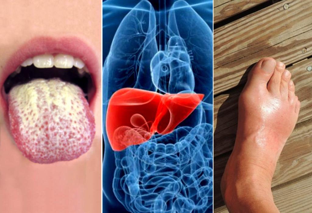 5 señales de advertencia de que tu hígado está lleno de toxinas.