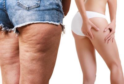 4 remedios naturales para eliminar la celulitis