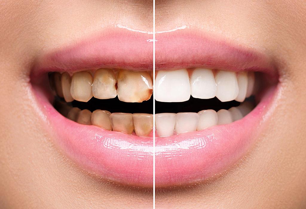 Consecuencias para tu salud de una mala higiene dental.